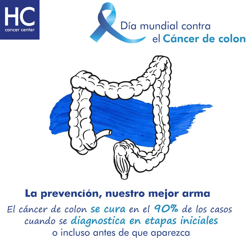 cáncer color hc marbella hosopital